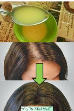 LEAVE ALL DOCTORS SURPRISED: APPLY THIS REMEDY AND YOUR HAIR WILL GROW FASTER THAN EVER