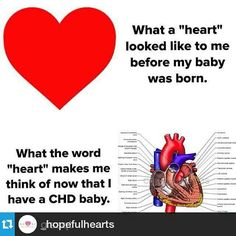 """So true! What CHD moms think of when they hear the word """"heart. Coarctation Of The Aorta, Atrial Septal Defect, Chd Awareness, Open Heart Surgery, Heart Month, Congenital Heart Defect, Heart Disease, My Heart, Brave Heart"""