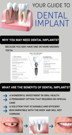 """If you are looking for a permanent option for tooth replacement Dental Implants is the option for you. """" Article of Dr. Tooth Extraction Aftercare, Tooth Extraction Healing, Implants Dentaires, Dental Implants, Dental Hygienist, Implant Dentistry, Teeth Health, Dental Health, Oral Health"""