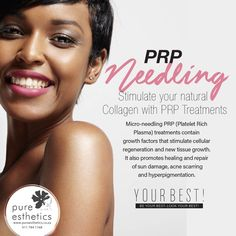 Stimulate your natural #Collagen with PRP Treatments Micro-needling #PRP (Platelet Rich Plasma) treatments contain growth factors that stimulate cellular regeneration and new tissue growth. It also promotes healing and repair of #sundamage, #acne #scarring and #hyperpigmentation. #SkinTreatments