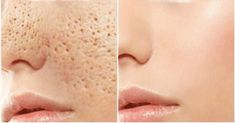 Tips for Getting Rid of Open Pores. How To Close Open Pores on Face Permanently? How To Remove Small Pores From Face Naturally? Getting Rid of Open Pores. Skin Toner, Oily Skin, Big Pores, Nose Pores, Apple Cider Vinegar For Skin, Reduce Pore Size, How To Reduce Pores, Shrink Pores, Les Rides