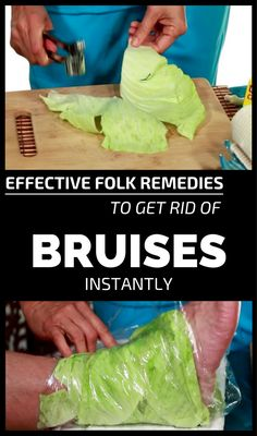Effective Folk Remedies To Get Rid Of Bruises Instantly