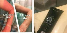 Oh wow!!!   Look at our fellow rep Susan results after just 1 application of our It Works DEFINING GEL!!  This is why I always keep our LIQUID GOLD on hand!!!   There are so many things it is good for!  Sunburn is only one of them!!! Thanks for sharing Susan!!   Get yours at my cost NOW!!!