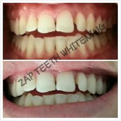ZAP TEETH WHITENING .....from $55. Click on our website to book an appointment : www.zapteethwhitening.com.au #zapteethwhitening #brisbaneteethwhitening #brisbane #teethwhitening #watchfreenetflix #beforeandafter #happycustomers by zapteethwhitening Our Teeth Whitening Page: http://www.lagunavistadental.com/services/cosmetic-dentistry/teeth-whitening/ Other Cosmetic Dentistry services we offer: http://www.lagunavistadental.com/services/cosmetic-dentistry/ Google My Business…