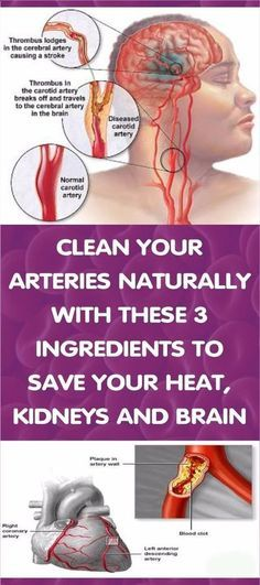 How to clean out arteries – 3 ingredients mixture