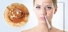 This simple but fabulous face mask containing four ingredients which is a best solution to remove acne scars, wrinkles, and Reverse Aging. Scar Treatment, Skin Treatments, Scar Remedies, Reverse Aging, Best Skin Care Routine, Acne Scar Removal, Remove Acne, Prevent Wrinkles, Homemade Skin Care