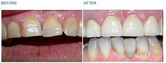 Dental Crowns - Case 4 This lady was concerned by the appearance of her front teeth. The front teeth were heavily filled, dark and crooked. The enamel on the teeth was also wearing away. She chose to have the teeth crowned to produce a straight and balanced smile. BEFORE: Note the dark patches at the gumline where the enamel has worn away. The tooth surface is irregular in texture and the left front tooth has twisted out of line with the others. AFTER: The final crowns. The teeth are…