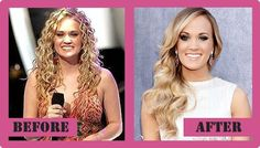Carrie Underwood Plastic Surgery Carrie Underwood Plastic Surgery Did She Get Pl. - - Carrie Underwood Plastic Surgery Carrie Underwood Plastic Surgery Did She Get Plastic Surgery Collection <! Bad Plastic Surgeries, Plastic Surgery Photos, Celebrity Plastic Surgery, Carrie Underwood Plastic Surgery, Plastic Surgery Before After, Jessica Biel, Carrie Fisher, Liposuction, American Actress