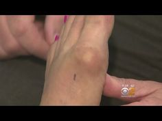 Bunion Reversal Exercises - YouTube