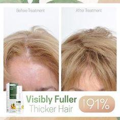 Hairdo For Long Hair, Grow Long Hair, Castor Oil For Hair Growth, Hair Growth Oil, Hair Up Styles, Hair Style, Hair Growth Solution, Hair Growing Tips, Regrow Hair