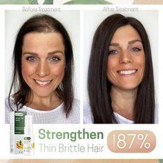 How To Grow Natural Hair, Grow Long Hair, Natural Hair Care, Hair Growth Solution, Hair Growing Tips, Hairdo For Long Hair, Hair Up Styles, Regrow Hair, Voluminous Hair