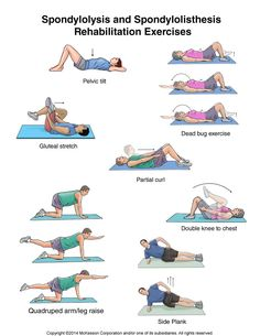 Spondylolysis and Spondylolisthesis Exercises. For more information or to arrange a treatment session contact us at istherapy@Outlook.com