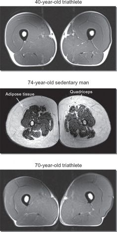 Need motivation? Then look here. This MRI comparing a 70 year old Triathlete with a 74 year old sedentary man should be all you need. Look at the muscle mass and even the bone density, the difference is outstanding.    The myth that your body magically deteriorates with age is false. It's a lack of exercise and movement that makes you weak and fat, not age.     Get up off your ass and run. You'll thank yourself when you're 70 :)