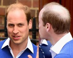 Prince William Hairstyles For Bald Spot