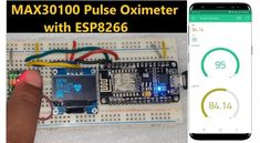 Esp8266 Projects, Iot Projects, Arduino Wifi, Arduino Board, Wearable Device, Wearable Technology, Wi Fi, Pulse Oximetry, Analog Signal