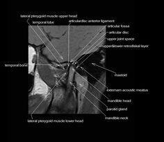 MRI spine anatomy | free MRI axial cervical spine anatomy ...