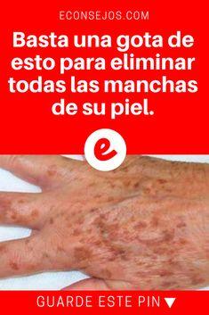 Manchas de su piel | Basta una gota de esto para eliminar todas las manchas de su piel. | Simple y al mismo tiempo sorprendente. De click para saber.