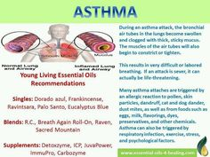 Asthma young living oils https://www.youngliving.com/signup/?site=US&sponsorid=1668681&enrollerid=1668681