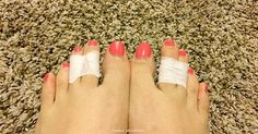 So Many Women Are Taping Their Middle Toes Together, And You'll Want To See The Reason Why!