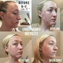 """Have you ever struggled with acne or known someone who has? If so you can probably relate to this...acne was an issue for me so I know I certainly can! Consultant, Emily Sunderland, shared her personal results and a little about what this biz is doing for her: """"Those of you that know me well probably know that I have struggled with acne my entire life, but what you probably don't know is just how bad it actually was. Inflamed, cystic, painful, embarrassing are just a few descriptors that…"""