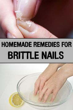 Homemade Remedies for Brittle Nails