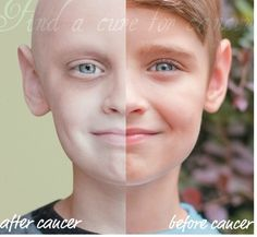 Before and AFTER cancer!