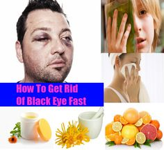 How To Get Rid Of Black Eye Fast | Heart Craft