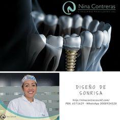 Que la ausencia de dientes no limite tu vida, los implantes dentales la solución más eficaz para recuperar tu sonrisa natural.  Contáctenos y déjanos conocer tu caso - agenda tu cita: 6571629 - WhatsApp: 3008934528 http://ninacontrerascmf.com/location/