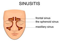 Your sinusitis symptoms may be due to sinus infection, which is often easy to identify. Different methods of treatment can resolve the condition quickly. http://universityhealthnews.com/daily/eyes-ears-nose-throat/sinusitis-symptoms-and-sinusitis-how-to-find-relief-from-a-common-ailment/