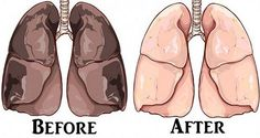 Although everyone on Earth knows that cigarettes are smoking, people who smoke just can't quit this nasty habit. Cigarettes are the #1 cause of lung cancer and numerous respiratory disorders, which is why you need to clean your lungs of nicotine and tar to decrease the risk of infections and further problems. The same goes …