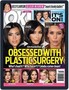 Kardashian Plastic Surgery, Extreme Plastic Surgery, Plastic Surgery Photos, Bad Celebrity Plastic Surgery, Celebrity Surgery, Plastic Surgery Gone Wrong, Acupuncture, Celebrity Weddings, Celebrity News