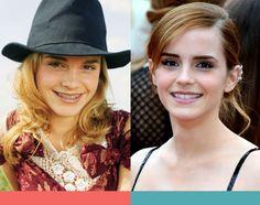 Emma Watson....ringrazia l'ortodonzia fissa!