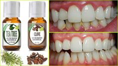 Rub these two oils on your gums and teeth and you probably will not need to go to a dentist again. Essential oils are widely used in aromatherap. Gum Health, Teeth Health, Healthy Teeth, Dental Health, Oral Health, Healthy Life, Reverse Receding Gums, Grow Back Receding Gums, Home Remedies