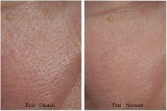3 maschere per attenuare l'aspetto dei pori dilatati