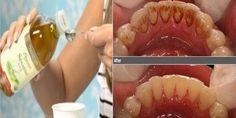 Ten magiczny składnik pozwoli pozbyć Ci się kamienia nazębnego i usunie szkodliwe bakterie z jamy ustnej - Zdrowe poradniki