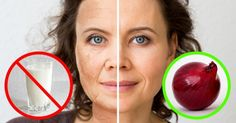 8Diet Secrets From aDermatologist That Will Make Your Skin Perfect
