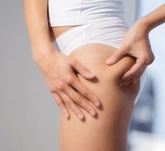 cellulite its causes and treatments