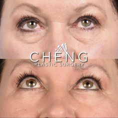 Eye bags weighing you down? 🏋️♀️ Blepharoplasty will lift you back up! 🙌🏽 Eyelid Surgery, Plastic Surgery, Eyes, Face, The Face, Faces, Cat Eyes, Facial