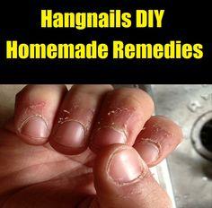#Hangnails DIY Homemade #Remedies http://ageless.givingtoyou.com/hangnails-diy-treatment https://www.facebook.com/RestoreAgingBodyandSkin