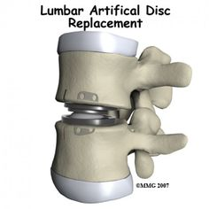 In this hub, I will talk about how artificial disc replacement surgery proves beneficial for patient suffering from chronic degenerative disc disease of the spine who are looking out for selecting a procedure or selecting a treatment and how lumbar. Back Surgery, Spine Surgery, Spinal Fusion Surgery, Back Disc, Lumbar Disc, Spondylolisthesis, Degenerative Disc Disease, Spinal Stenosis, Hip Problems
