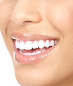 Mantén tu boca saludable y dile adiós a la sensibilidad dental. #Consejos #Tips #Salud #Health