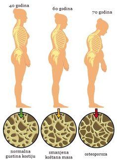 OSTEOPOROZA KOSTIJUPRIRODNO LEČENJE Osteoporoza kostijuje progresivna bolest za koju se kao najbolja preventiva pokazala pravilna ishrana koja obiluje sa dragocenim mineralima, a pomoć za lečenje osteoporoze pružaju i mnogi prirodni preparati. Koliko su važnesvakodnevne vežbe za osteoporozu ,koje nam jačaju slabe kosti,kako nadoknaditi manjak minerala uz pomoć zdrave ishrane i kako se pripremaju prirodni lekovi saznajte…