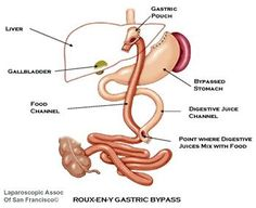ROUX-EN-Y GASTRIC BYPASS  (KIND I HAD)
