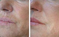 Profhilo Gesichtsverjüngung bei OmniMed Liftingeffekt und Feuchtigkeitsboost dank Hyaluronfiller Profhilo Operation, Medicine, Face