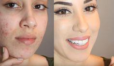 16 bases que vão cobrir sua acne