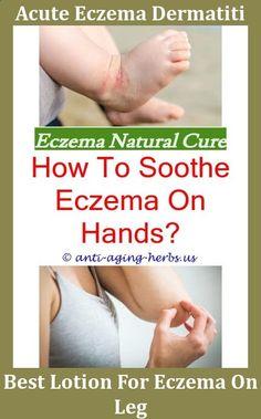 Treatment For Wedding Ring Eczema Health Pinterest