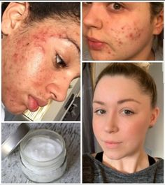 Pimple Scars, Pimples On Face, Acne Scars, Diy Acne Mask, How To Reduce Pimples, Acne Serum, Pimples Overnight, How To Get Rid Of Acne, Life Hacks Pimples