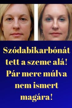 Szódabikarbónát tett a szeme alá! Anti Aging, Health Care, Beauty Hacks, Health Fitness, Therapy, Hair Beauty, Humor, Eat, Healthy