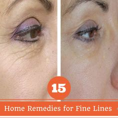 Beauty Remedies Home Remedies for Fine Lines Beauty Care, Beauty Skin, Health And Beauty, Hair Beauty, Home Remedies For Wrinkles, Sensitive Skin Care, How To Get Rid Of Acne, Tips Belleza, Beauty Secrets
