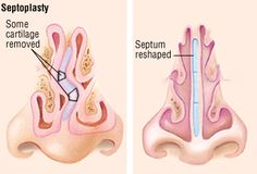 Deviated Septum - an easy to understand guide covering causes, diagnosis, symptoms, treatment and prevention plus additional in depth medical information. Sinus Surgery, Nose Surgery, Relieve Sinus Congestion, Nasal Septum, Sinus Problems, Sinus Pressure, Surgery Recovery, Medical Information, Health Matters